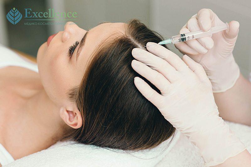 Лечение выпадения волос Киев