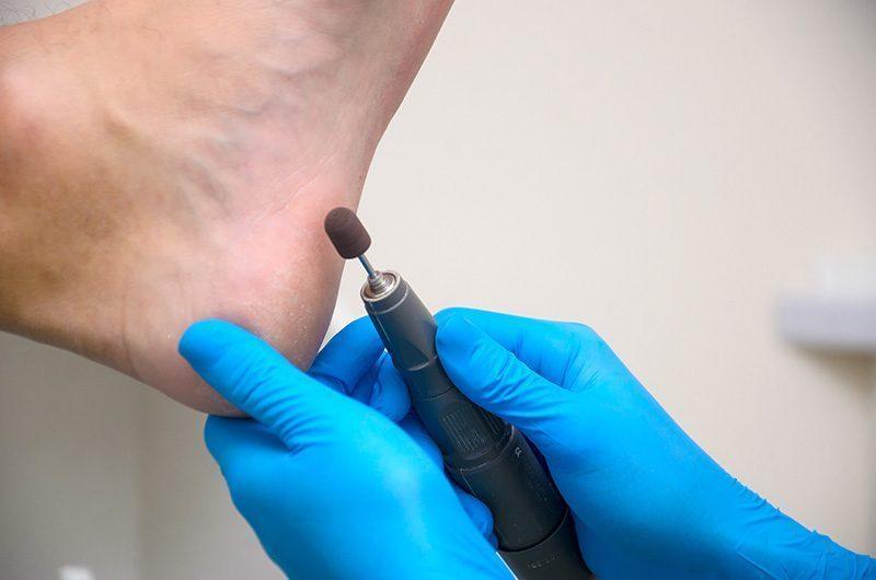Лечение трещин на пятках, кератоза и удаление корневых мозолей