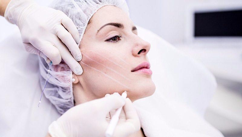 Мезонити для лица и тела