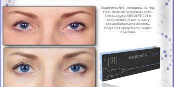 Мезоай (MESOEYE) - решение проблем вокруг глаз в МКЦ Exellence