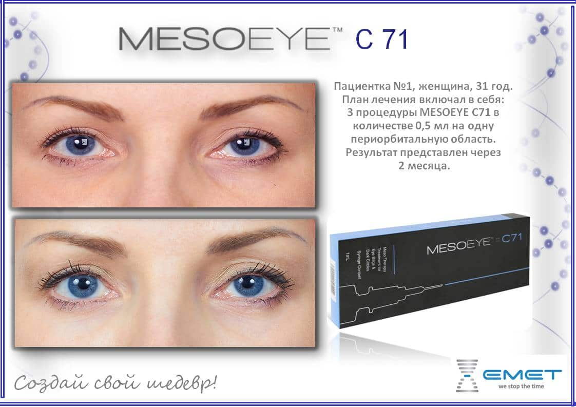 Мезоай (MESOEYE) — решение проблем вокруг глаз в МКЦ Exellence