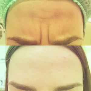 Коррекция морщин (ботулинотерапия)
