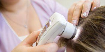 Трихоскопия — ключевой метод диагностики состояния волос и кожи головы