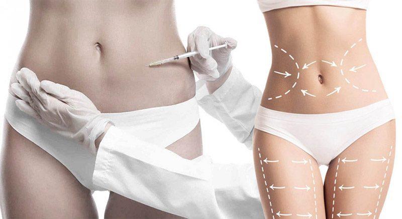 Липолитики для тела — надёжный способ борьбы с локальными жировыми отложениями