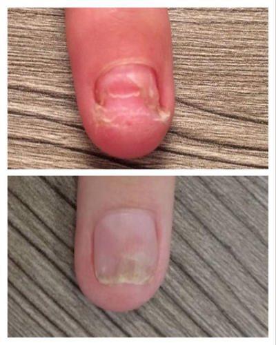 Лечение грибка ногтей лазером Погребняк Елена Васильевна