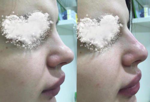 Контурная пластика губ и носа — Фадеева Лидия Павловна