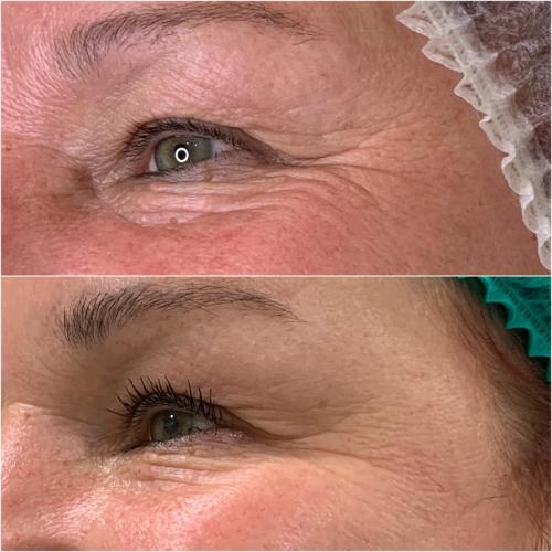 Коррекция мимических морщин зона вокруг глаз