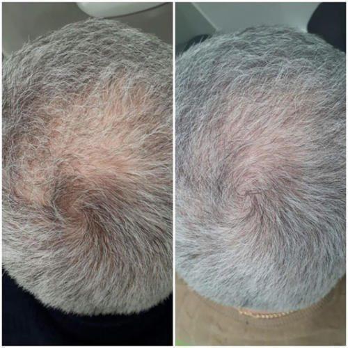 Плазмолифтинг волосистой части головы — Оводенко Наталья Вячеславовна