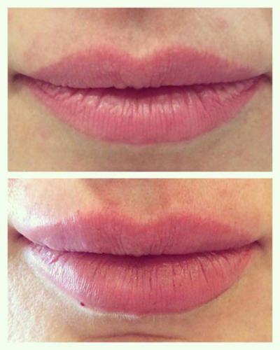 Увеличение губ — Кальянова Виктория Дезидеровна