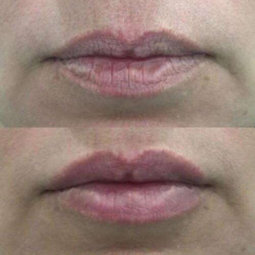 Увеличение губ — Фадеева Лидия Павловна