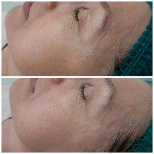 Пилинг для лица Skin Recovery — Доценко Лилия Григорьевна