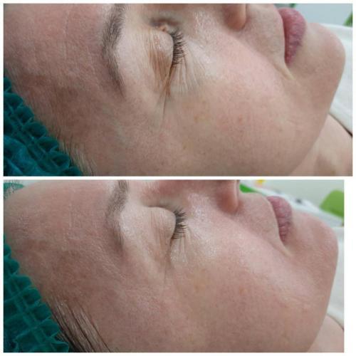Пилинг для лица Skin-Recovery — Доценко Лилия Григорьевна