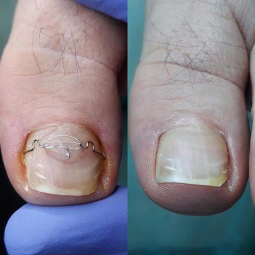 Лечение вросшего ногтя с помощью скобы 3-ТО Конев Андрей Васильевич2