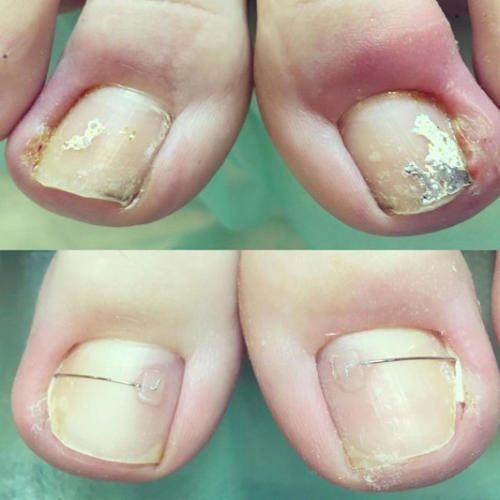 Лечение вросшего ногтя с помощью скобы Combiped — Марчук Евгения Анатольевна