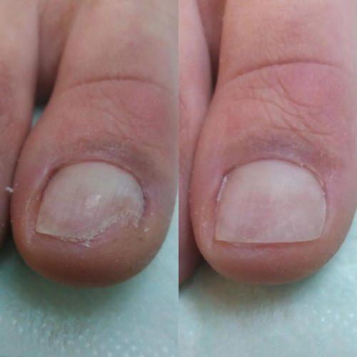 Протезирование ногтевой пластины — Сажай Наталья Федоровна